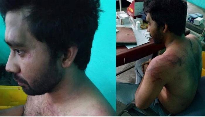 Assam Doctor Assualt Case: ഡോക്ടറെ മർദ്ദിച്ച കേസിൽ സ്ത്രീ ഉൾപ്പെടെ രണ്ടു പേർ കൂടി അറസ്റ്റിൽ
